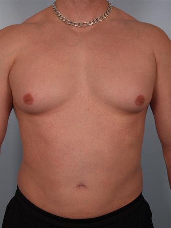 Male Breast/Areola Reduction Gallery - Patient 1311042 - Image 3