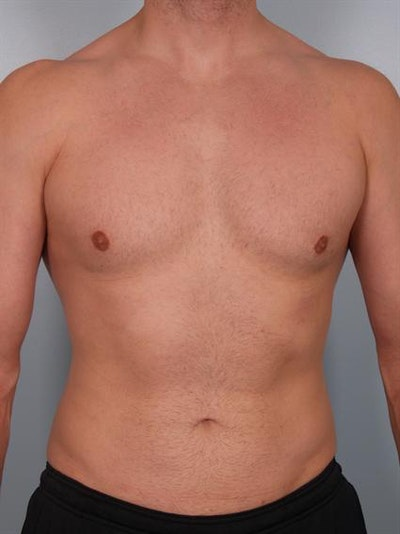 Male Breast/Areola Reduction Gallery - Patient 1311042 - Image 4