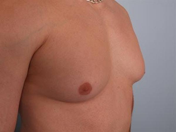 Male Breast/Areola Reduction Gallery - Patient 1311042 - Image 5