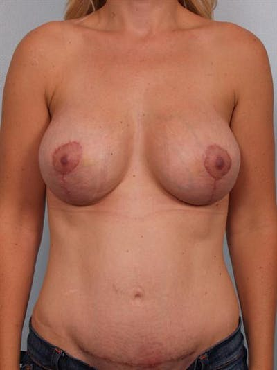 Breast Lift Gallery - Patient 1311045 - Image 2