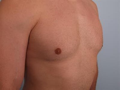 Male Breast/Areola Reduction Gallery - Patient 1311042 - Image 6