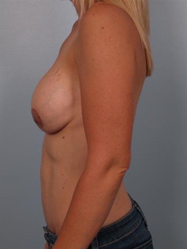 Breast Lift Gallery - Patient 1311045 - Image 3