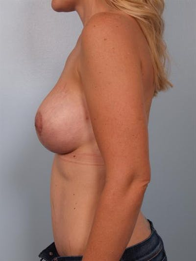 Breast Lift Gallery - Patient 1311045 - Image 4