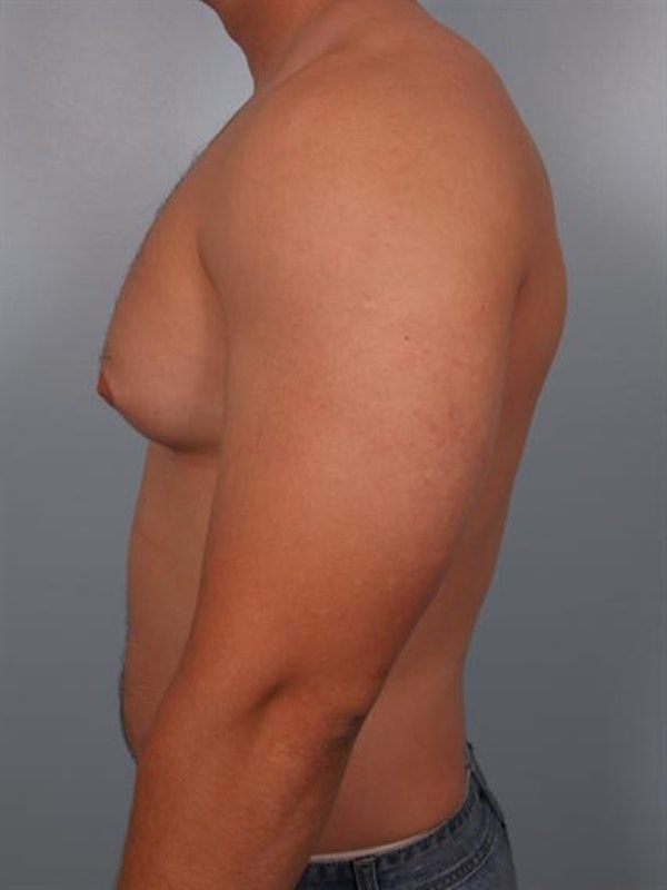 Male Breast/Areola Reduction Gallery - Patient 1311046 - Image 1