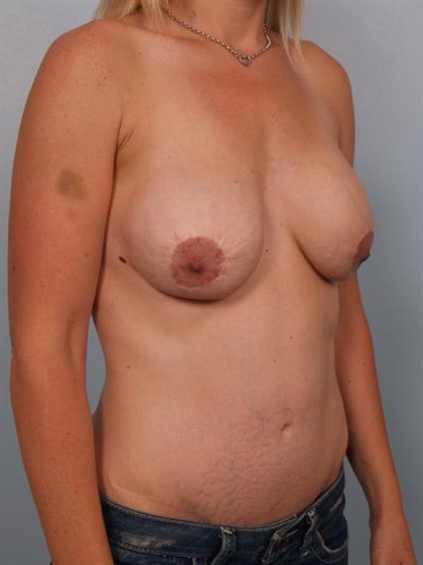 Breast Lift Gallery - Patient 1311045 - Image 5
