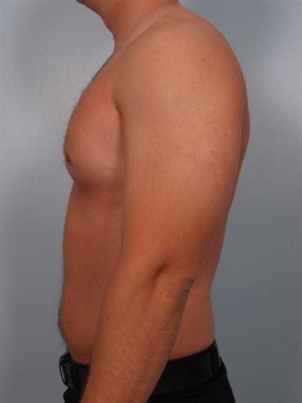Male Breast/Areola Reduction Gallery - Patient 1311046 - Image 2