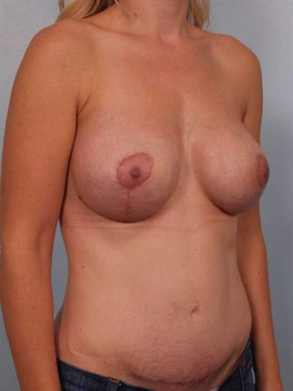 Breast Lift Gallery - Patient 1311045 - Image 6