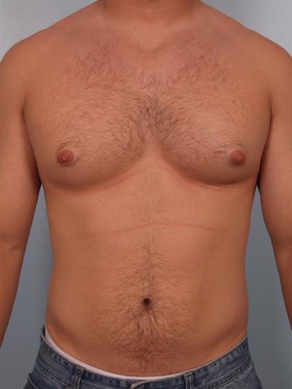Male Breast/Areola Reduction Gallery - Patient 1311046 - Image 3