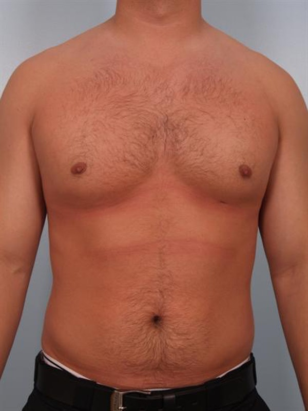 Male Breast/Areola Reduction Gallery - Patient 1311046 - Image 4