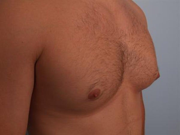 Male Breast/Areola Reduction Gallery - Patient 1311046 - Image 5