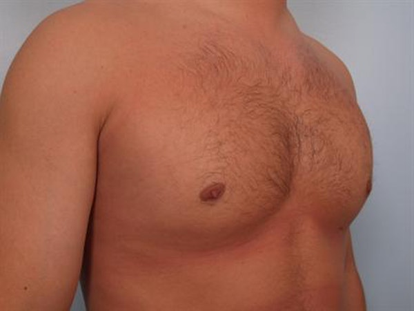 Male Breast/Areola Reduction Gallery - Patient 1311046 - Image 6