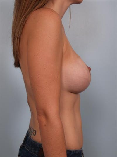 Breast Lift Gallery - Patient 1311050 - Image 4