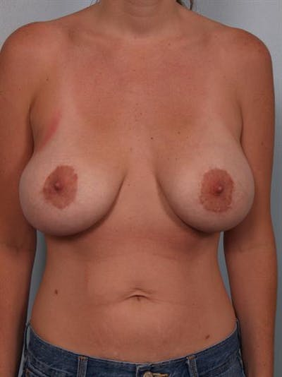 Breast Lift Gallery - Patient 1311050 - Image 1