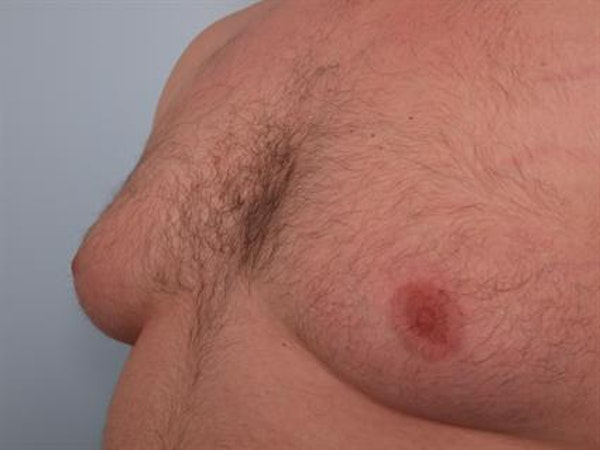 Male Breast/Areola Reduction Gallery - Patient 1311049 - Image 1