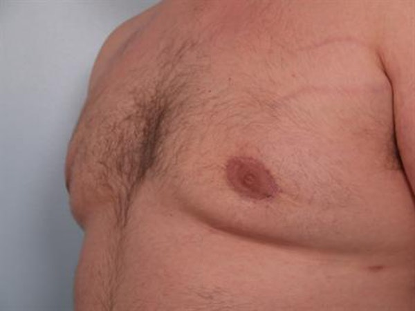 Male Breast/Areola Reduction Gallery - Patient 1311049 - Image 2