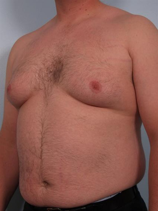 Male Breast/Areola Reduction Gallery - Patient 1311049 - Image 3