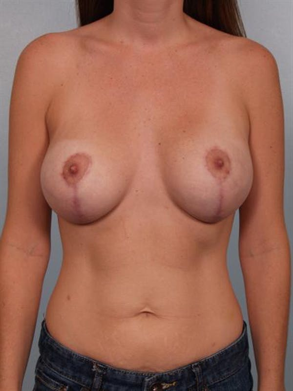 Breast Lift Gallery - Patient 1311050 - Image 2