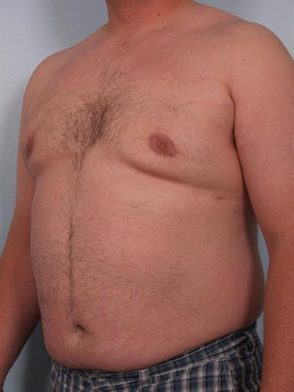 Male Breast/Areola Reduction Gallery - Patient 1311049 - Image 4