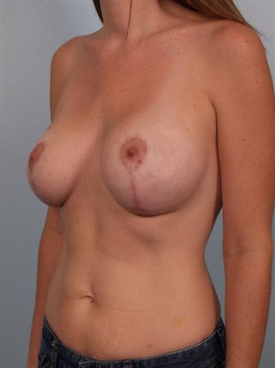 Breast Lift Gallery - Patient 1311050 - Image 6