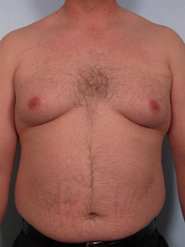 Male Breast/Areola Reduction Gallery - Patient 1311049 - Image 5