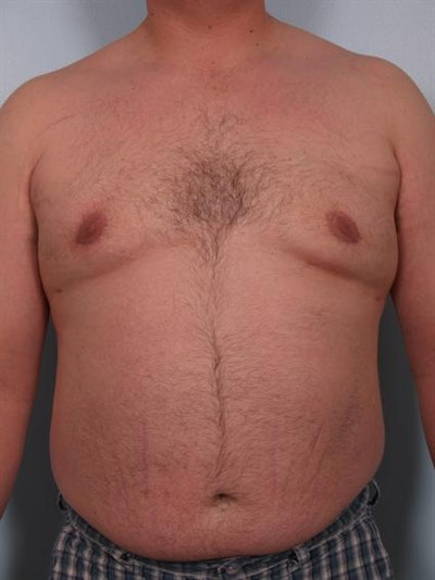 Male Breast/Areola Reduction Gallery - Patient 1311049 - Image 6