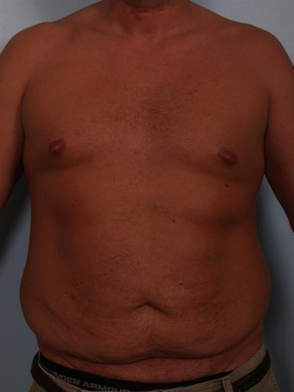 Male Breast/Areola Reduction Gallery - Patient 1311054 - Image 1
