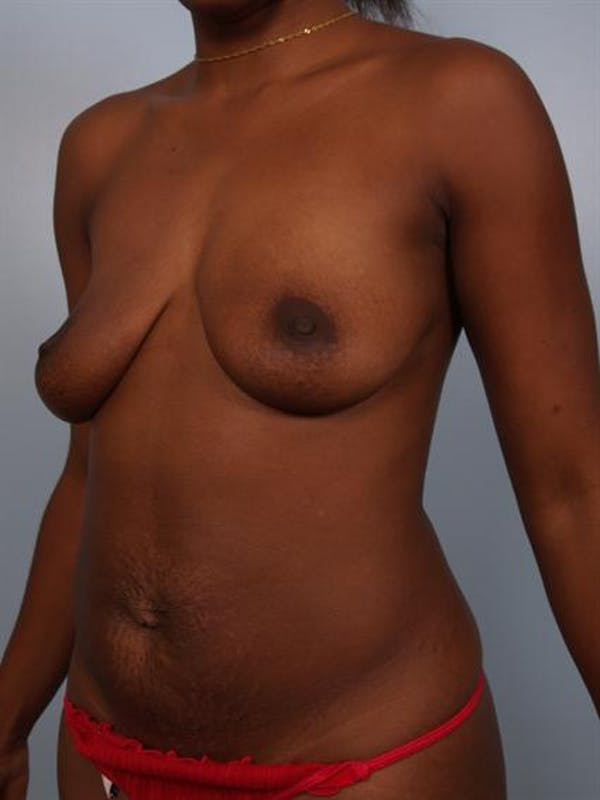 Breast Lift Gallery - Patient 1311053 - Image 3