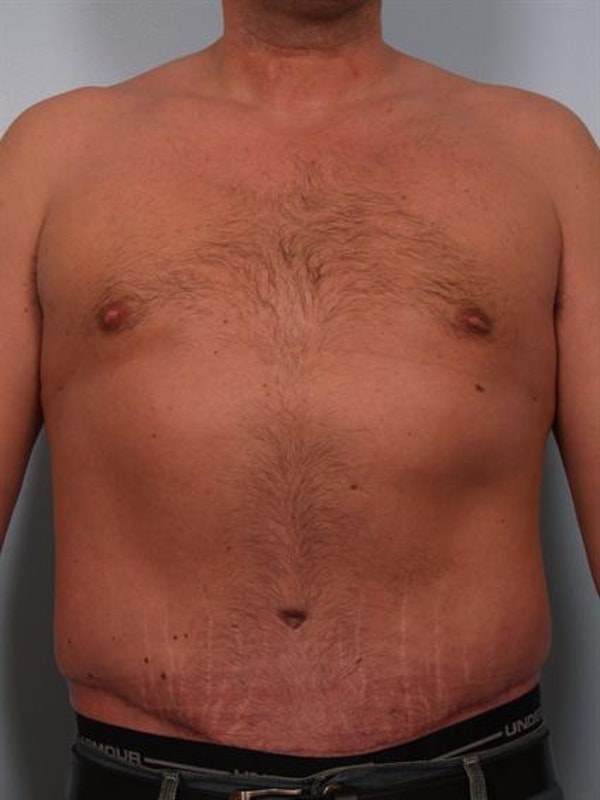 Male Breast/Areola Reduction Gallery - Patient 1311054 - Image 2
