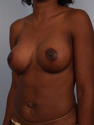 Breast Lift Gallery - Patient 1311053 - Image 4