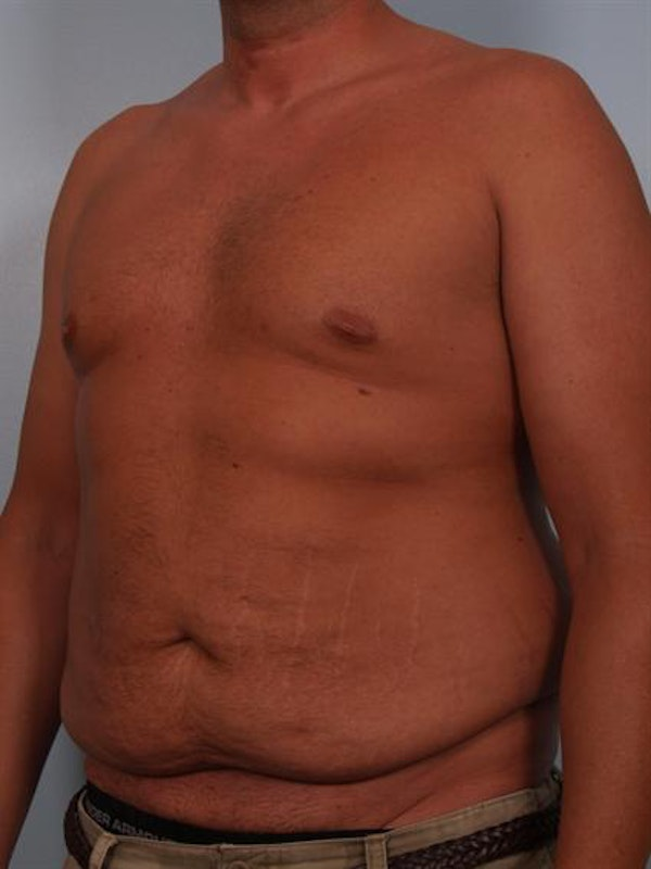 Male Breast/Areola Reduction Gallery - Patient 1311054 - Image 3