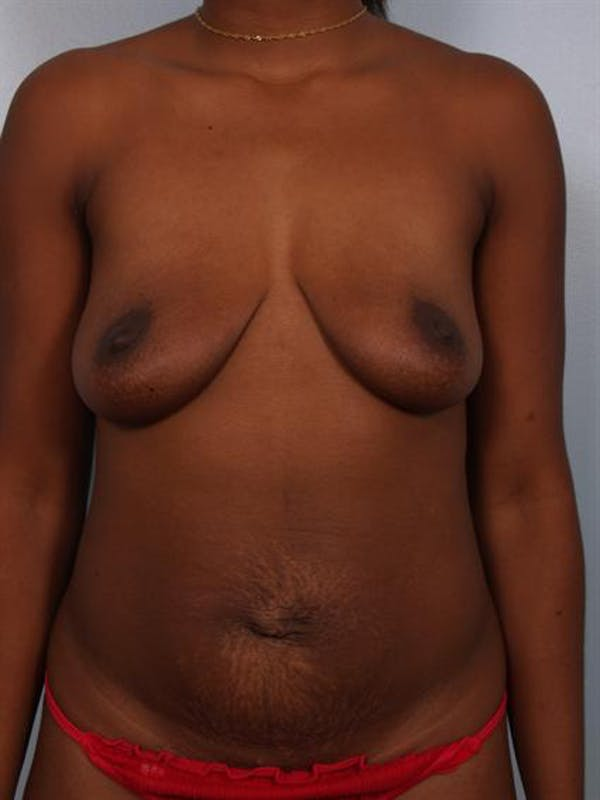 Breast Lift Gallery - Patient 1311053 - Image 1