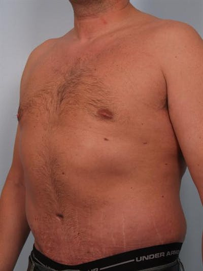 Male Breast/Areola Reduction Gallery - Patient 1311054 - Image 4
