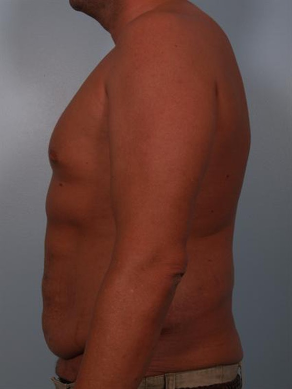 Male Breast/Areola Reduction Gallery - Patient 1311054 - Image 5