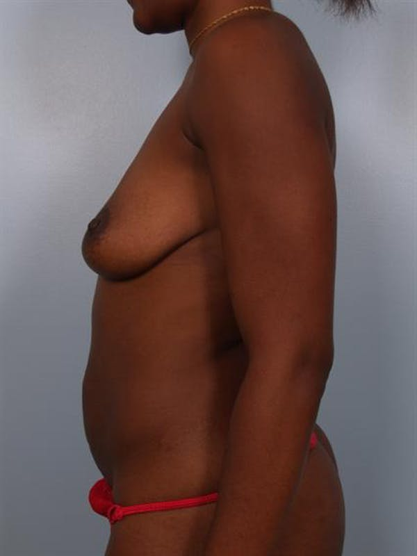 Breast Lift Gallery - Patient 1311053 - Image 5