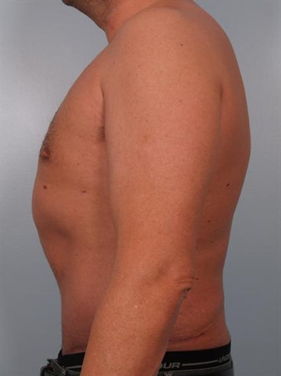 Male Breast/Areola Reduction Gallery - Patient 1311054 - Image 6