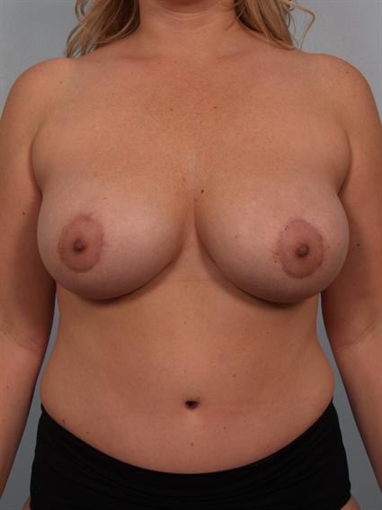 Image5 - Before and after image of Tummy Tuck by Dr. Cohen.