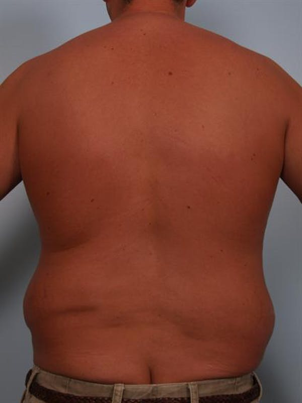 Male Breast/Areola Reduction Gallery - Patient 1311054 - Image 7
