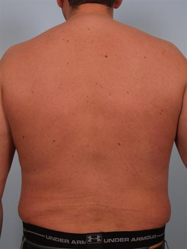 Male Breast/Areola Reduction Gallery - Patient 1311054 - Image 8