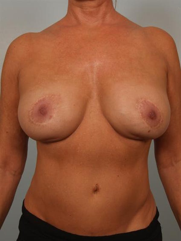 Breast Lift Gallery - Patient 1311057 - Image 1