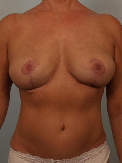 Breast Lift Gallery - Patient 1311057 - Image 2