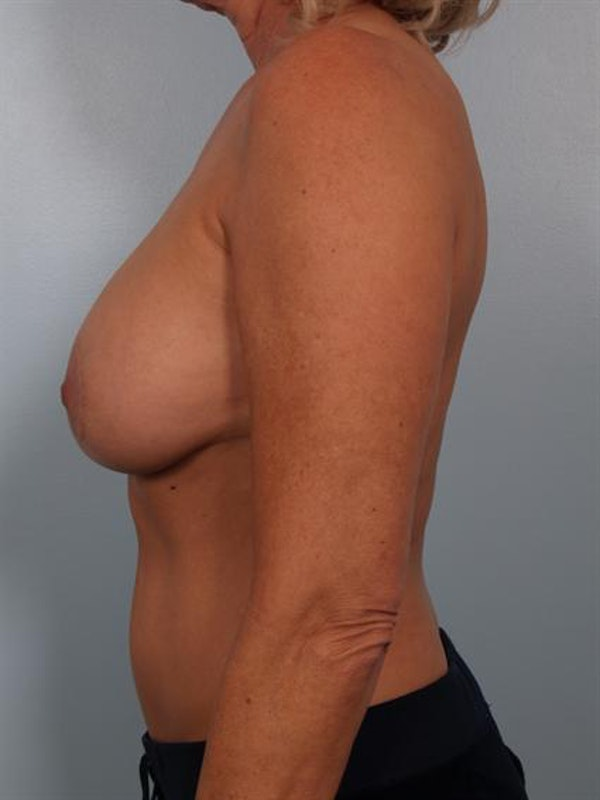 Breast Lift Gallery - Patient 1311057 - Image 5