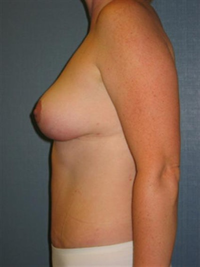 Tummy Tuck Gallery - Patient 1311058 - Image 2