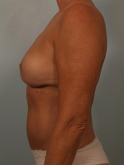 Breast Lift Gallery - Patient 1311057 - Image 6