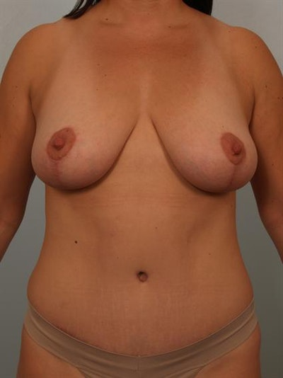 Power Assisted Liposuction Gallery - Patient 1311062 - Image 2