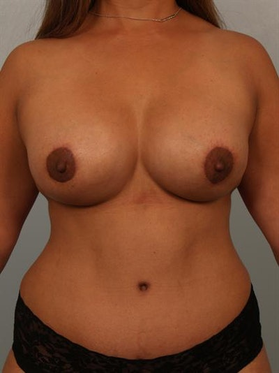 Tummy Tuck Gallery - Patient 1311061 - Image 2