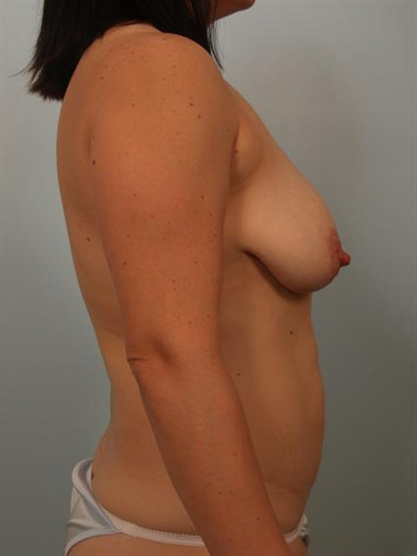 Power Assisted Liposuction Gallery - Patient 1311062 - Image 5