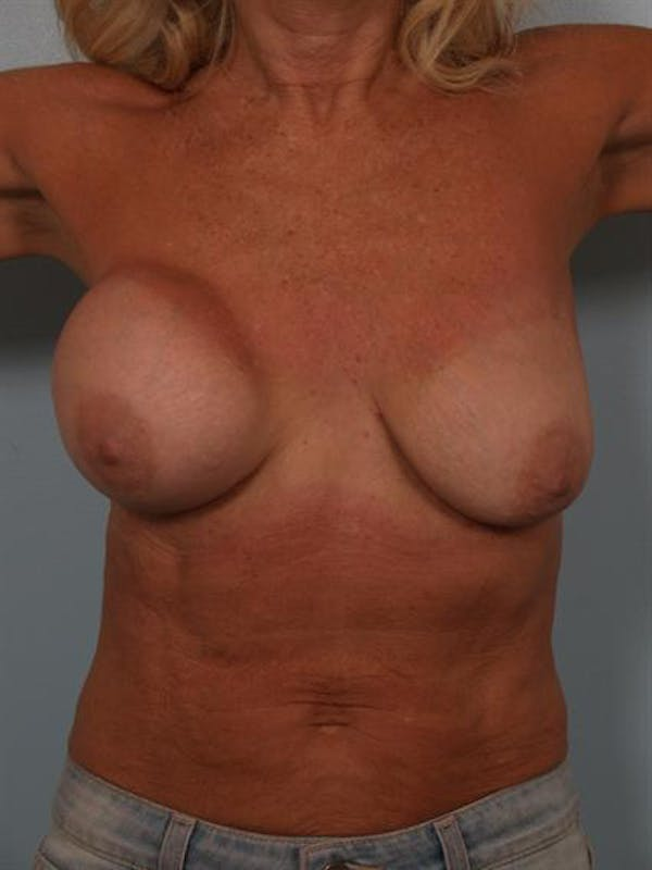 Breast Lift Gallery - Patient 1311063 - Image 1