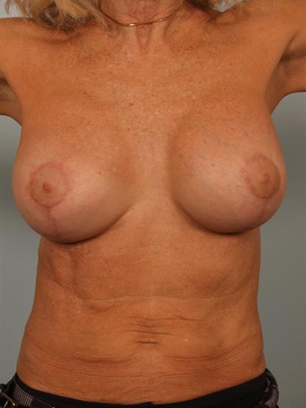 Breast Lift Gallery - Patient 1311063 - Image 2