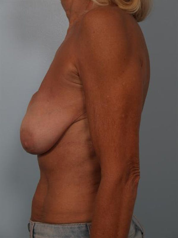 Breast Lift Gallery - Patient 1311063 - Image 3