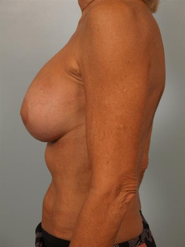 Breast Lift Gallery - Patient 1311063 - Image 4